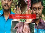 Bangladeş'te parmak izi olmayan adam görenleri şaşırtıyor!